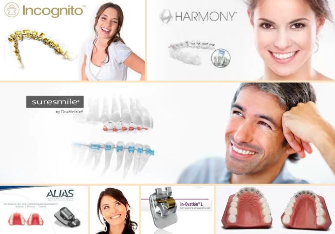 Different Types Of Lingual Braces Read More At Https Mashoufortho Blog 2018 04 03 Lingual Braces Vs Invisalign Whic Lingual Braces Invisalign Clear Braces