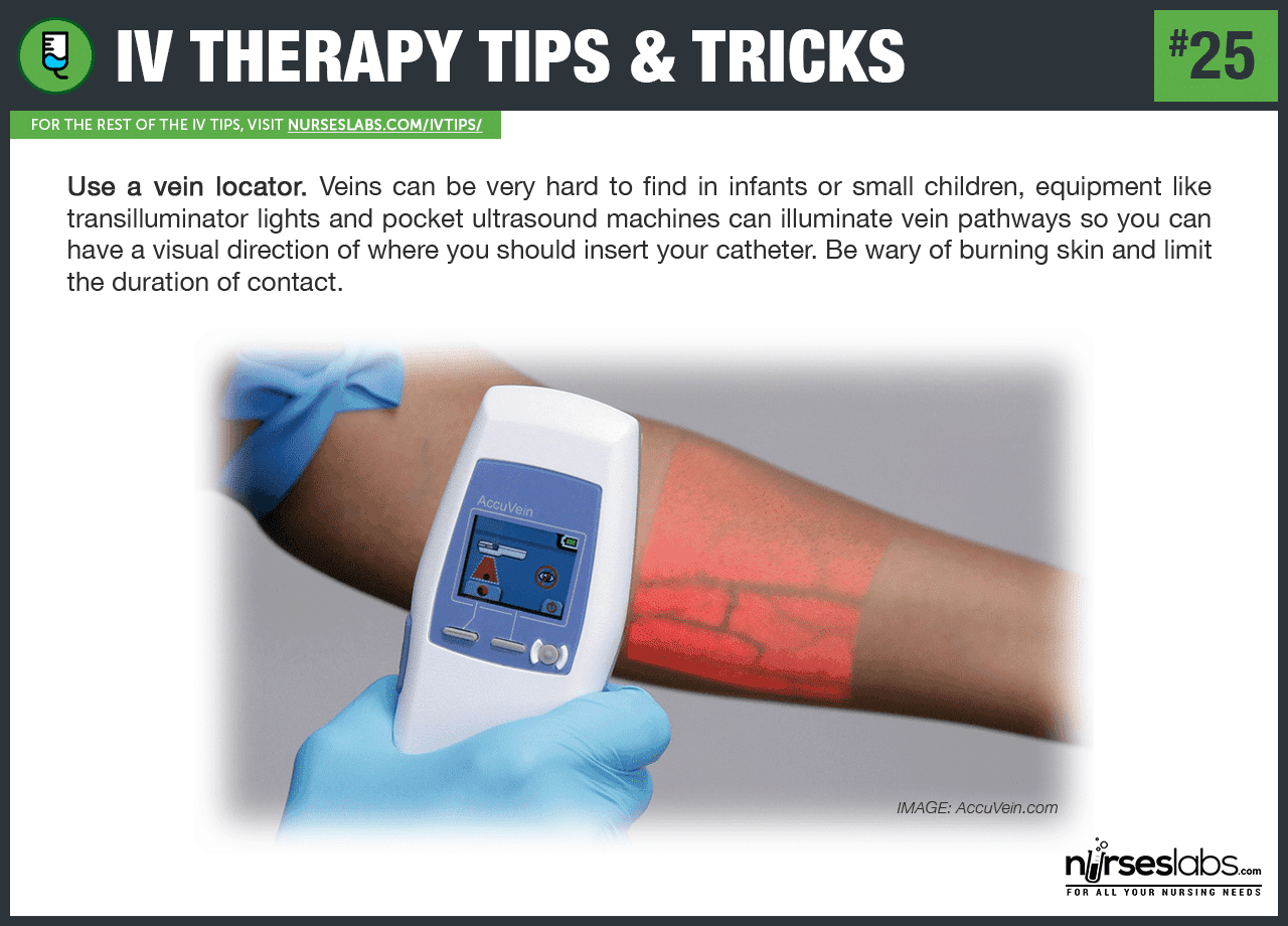 50+ IV Therapy Tips and Tricks The Ultimate Guide Iv