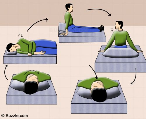 Positional Vertigo Exercises Vertigo Exercises Epley Maneuver Physical Therapy