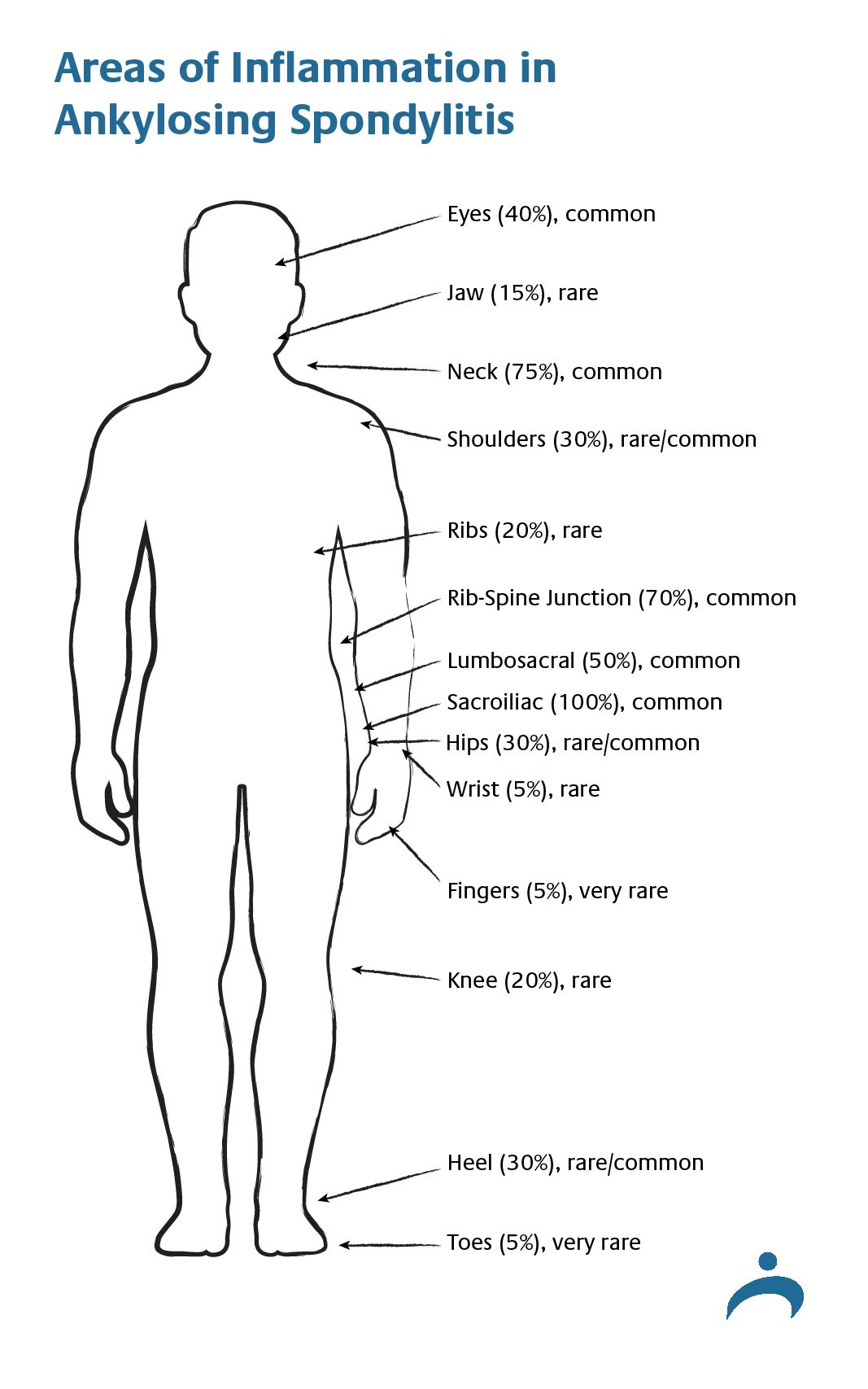 medium resolution of areas of inflammation in ankylosing spondylitis diagram