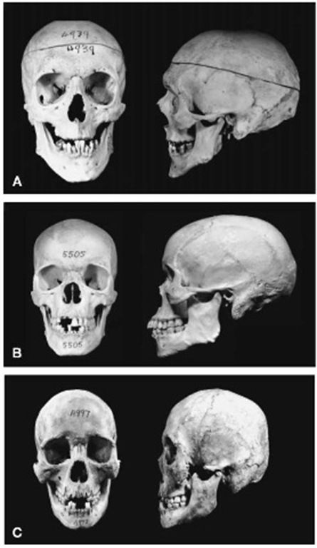 Question How Skull structures different races