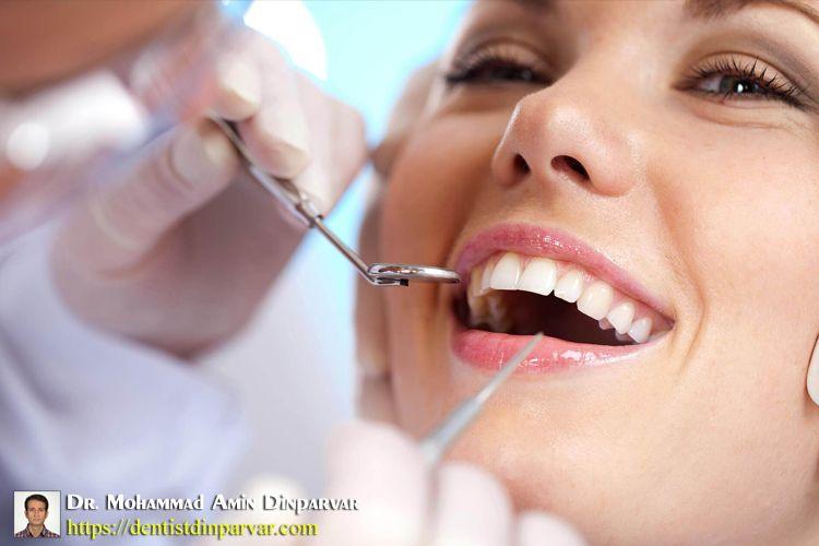 Pin by مرکز ایمپلنت و زیبایی دندان شی on http