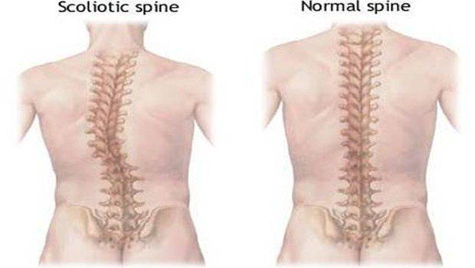 can scoliosis cause chest pain