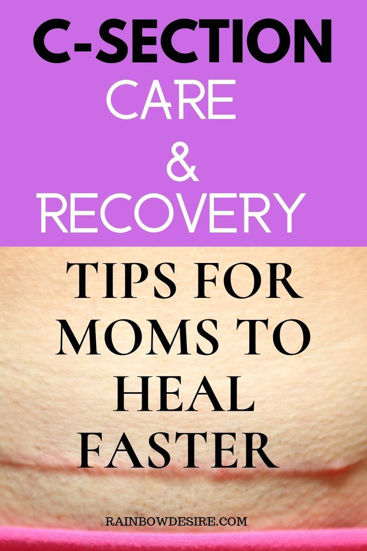 Post C-Section Care and Recovery Tips for moms | Post c ...