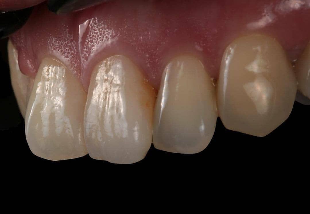 Regrann From C H Chen I Like The Texture Emax Layered By C H Chen Dental Dentaltech Dentaltechnician De Dental Art Dental Photography Dental Ceramics