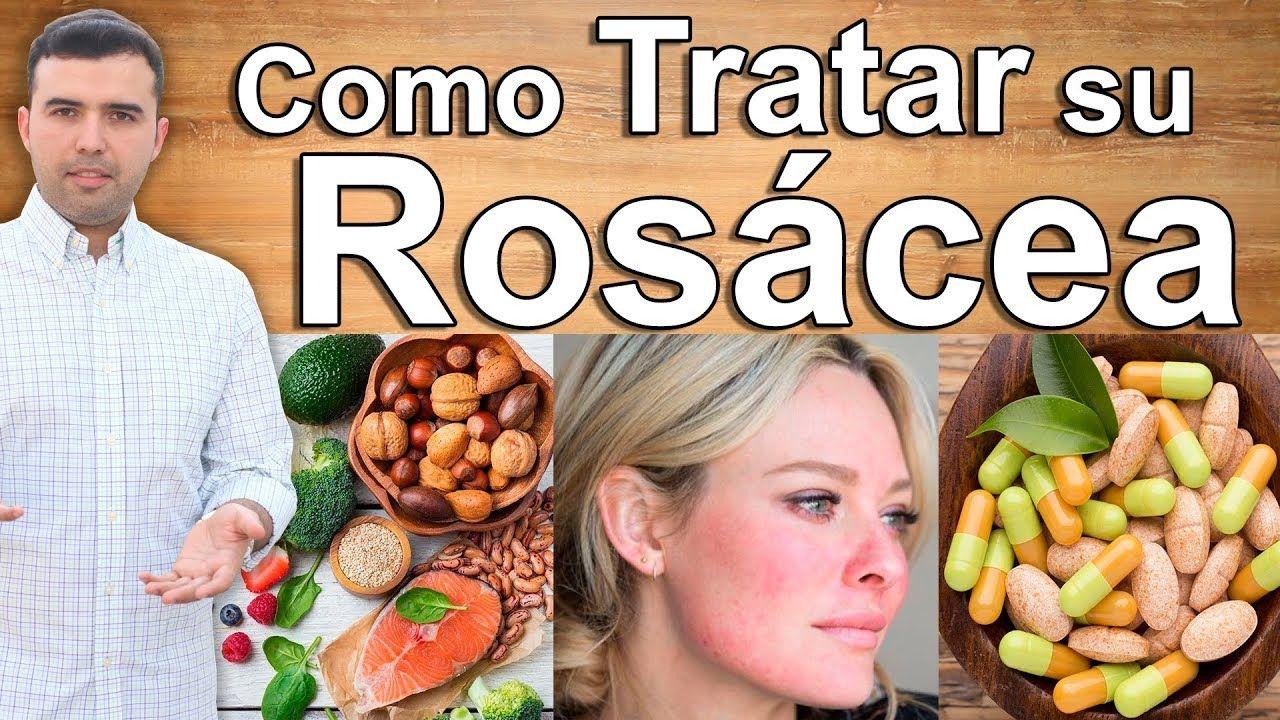 Adiós A La Rosacea Remedios Caseros Y Cremas Para Combatir Y Curar Las Manchas En La Cara Y Piel Youtube Remedios Caseros Cremas Para La Rosacea Remedios