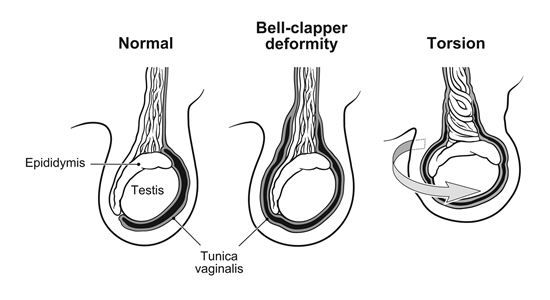Testicular torsion bell clapper deformity and sexual health