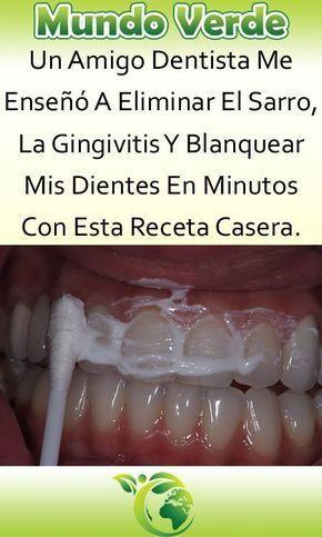 Account Suspended Remedios Para La Salud Eliminar Sarro Salud Dental