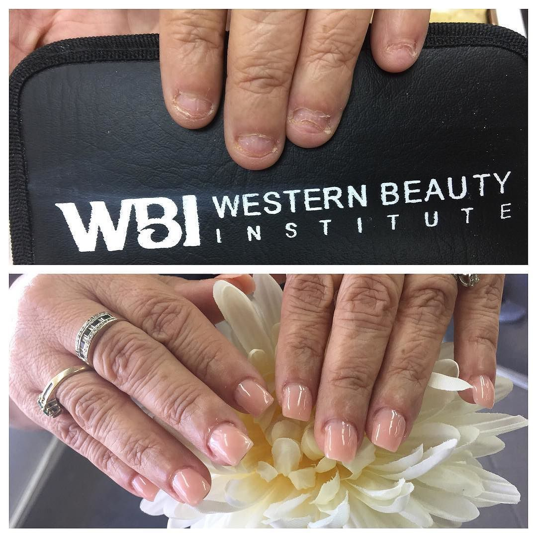 Do you struggle with severe nail biting? Let our