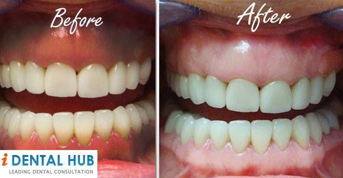 Dark Gums Can They Be Made Natural Pink Dark Gums Gum Teeth Remedies
