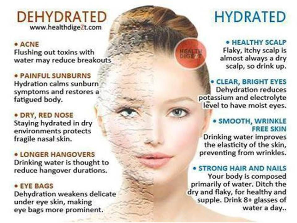 Hydration Importance Scalp Acne Skin Care Skin Tips