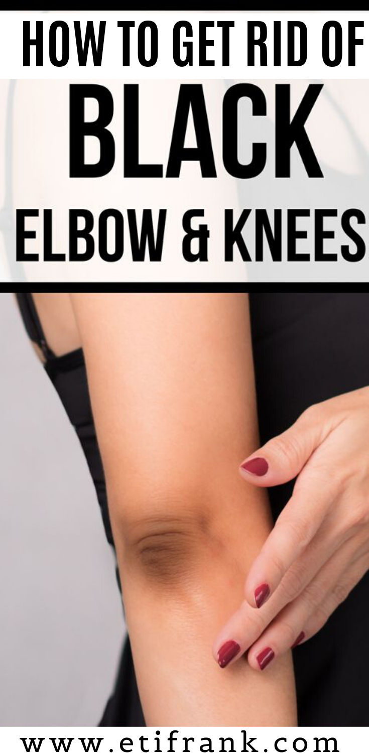 HOW TO GET RID OF DARK ELBOWS AND KNESS Its not a problem to have dark elbows and knees Some people however are uncomfortable having these and it affects their confidence...