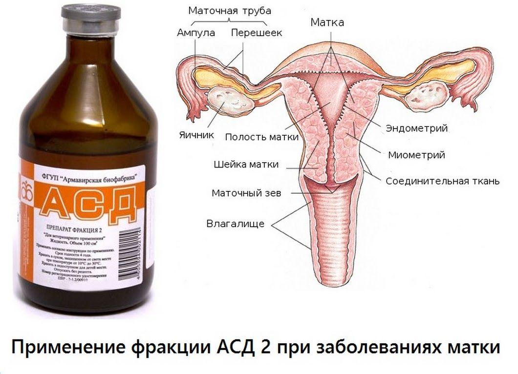 Схема эрозии матки