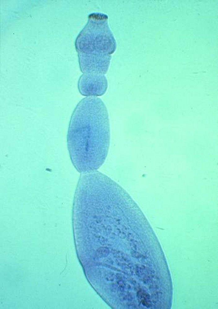 giardia intestinalis nasıl bulaşır