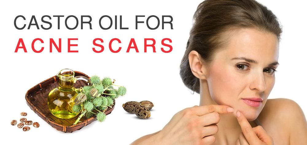 100% Pure Castor Oil - Cold Pressed   Hair Care   Castor oil