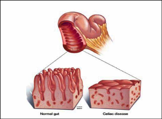 What is Celiac Disease? | Celiac disease, What is celiac ...
