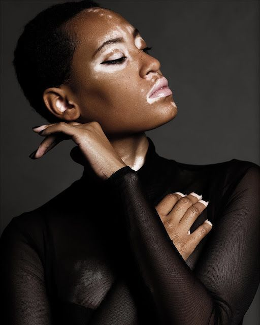 CoverGirls Latest Campaign features Model with Vitiligo