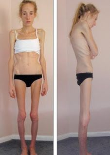 news of the world top early warning signs of anorexia nervosa