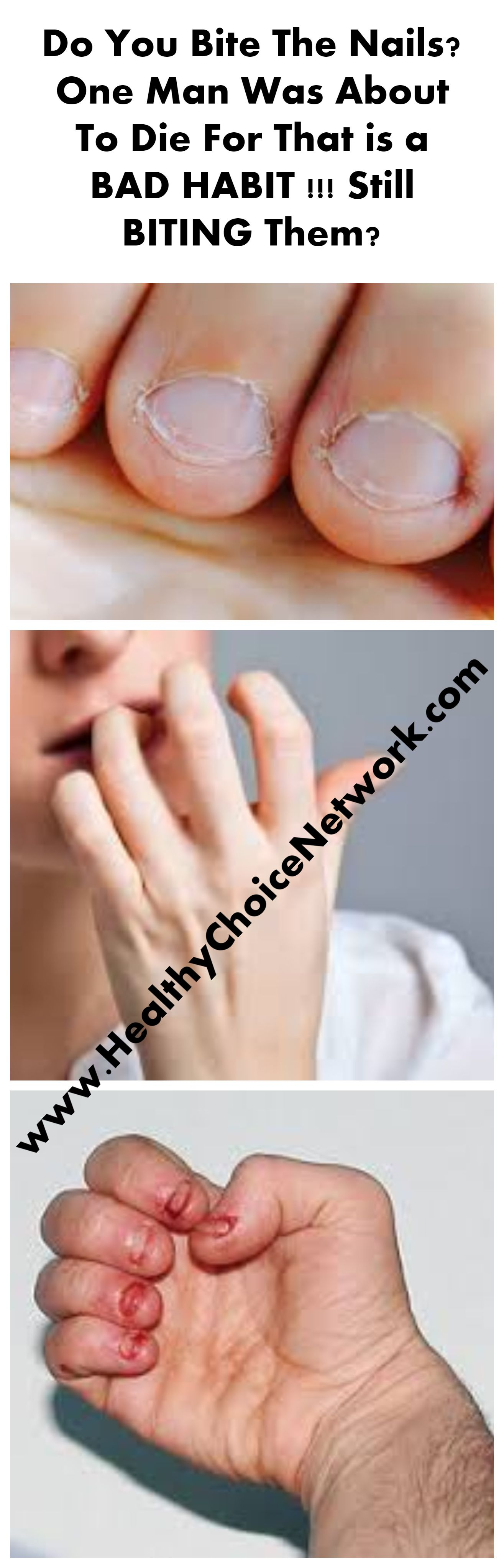 biting nails health issue dangerous Nails first