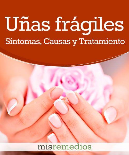 Uñas Frágiles O Quebradizas Uñas Uñas Fragiles