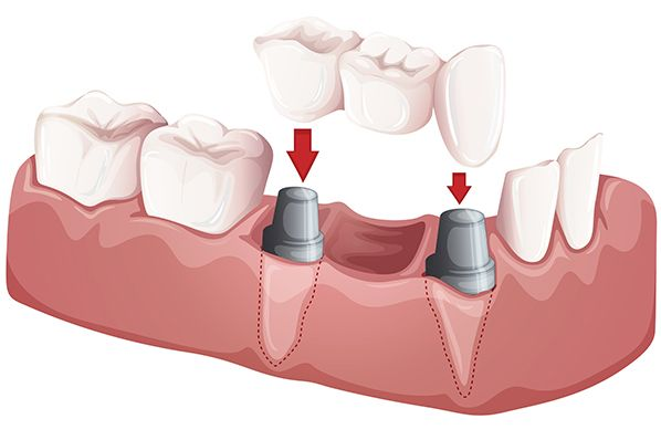 New Dental Tech Makes Fixing Your Teeth Painless Fast Amp Cheap The Daily Lifer Dental Cosmetics Dental Crowns Dental Bridge