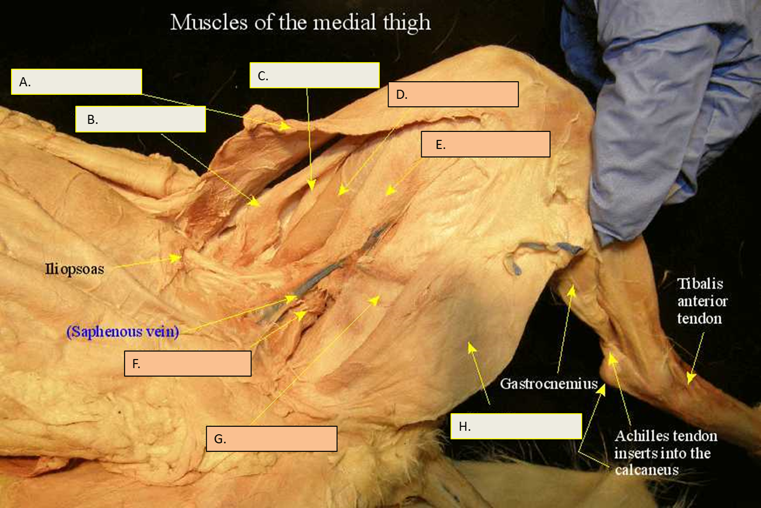 17) Identify the cat muscles labeled AH. Cat anatomy