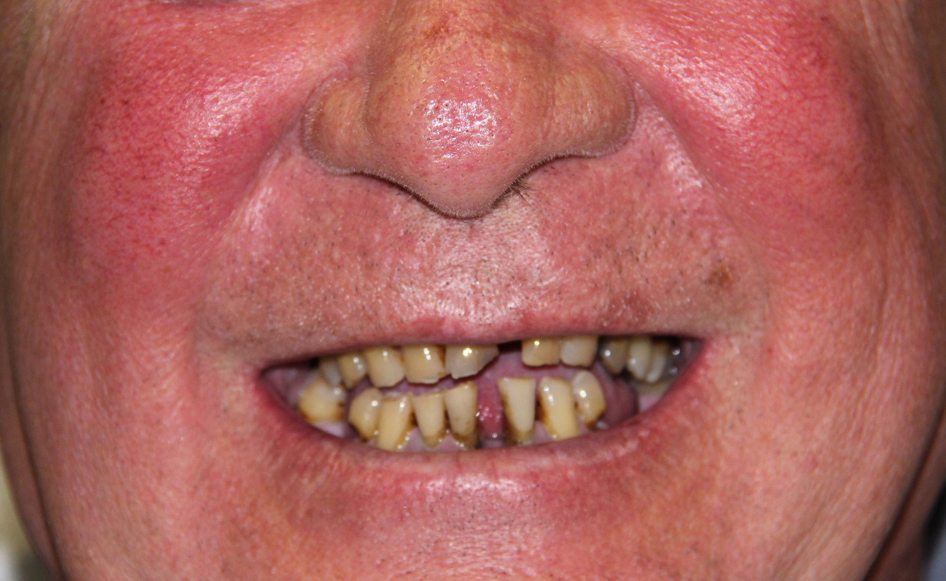 G4 Implant Solution Frequently Asked Questions (With