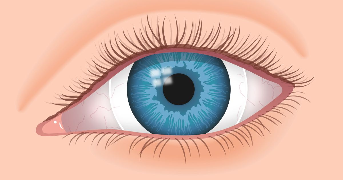 Contacts for hardtofit eyes laser eye surgery cost