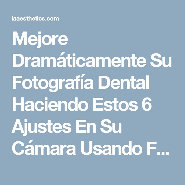 Mejore Dramáticamente Su Fotografía Dental Haciendo Estos 6 Ajustes ...