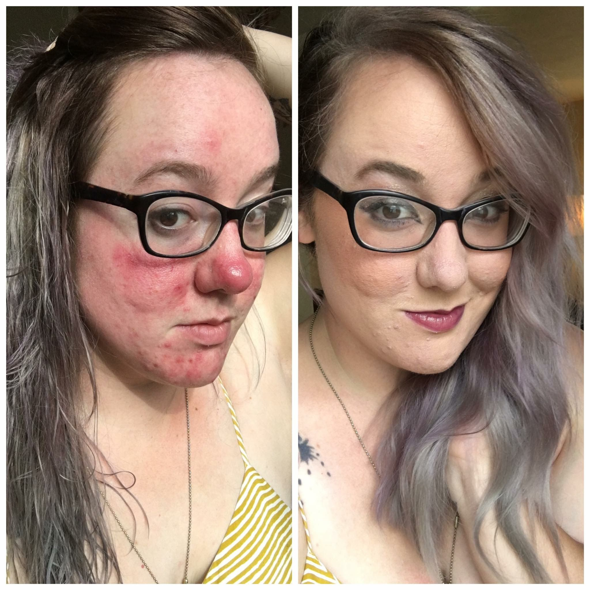 foundation for rosacea