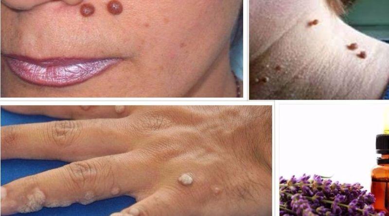 warts on neck hands)