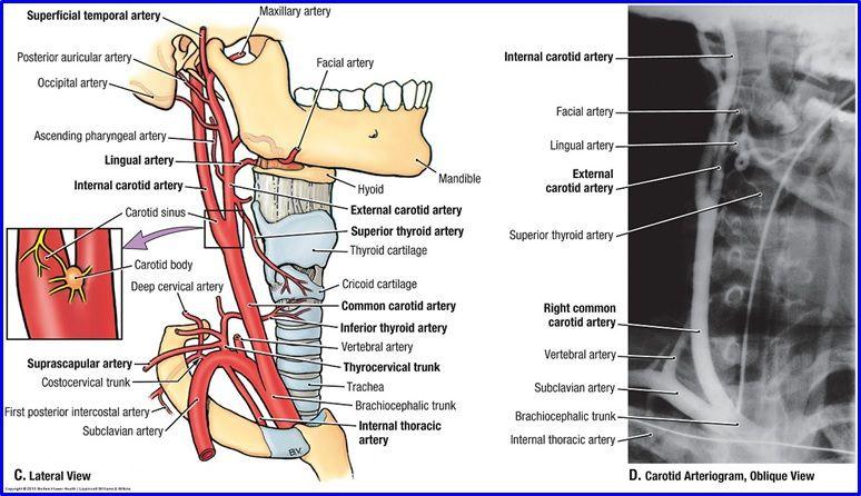 carotid artery bulb anatomy - Google Search | Cardiovascular System ...