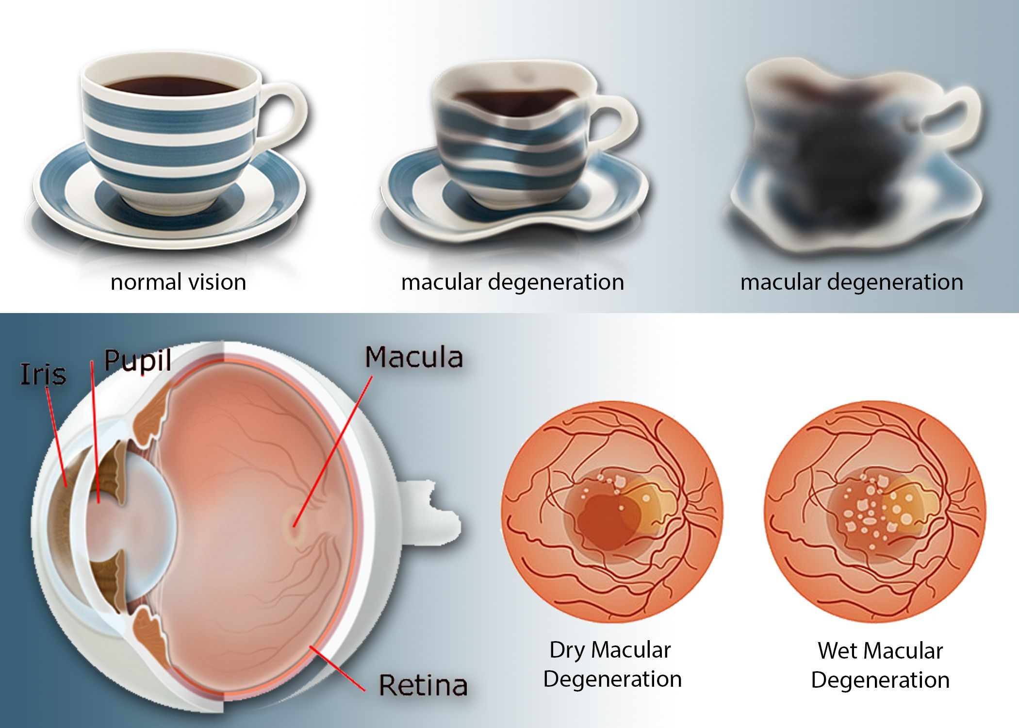 AMD, or agerelated macular degeneration, is a leading