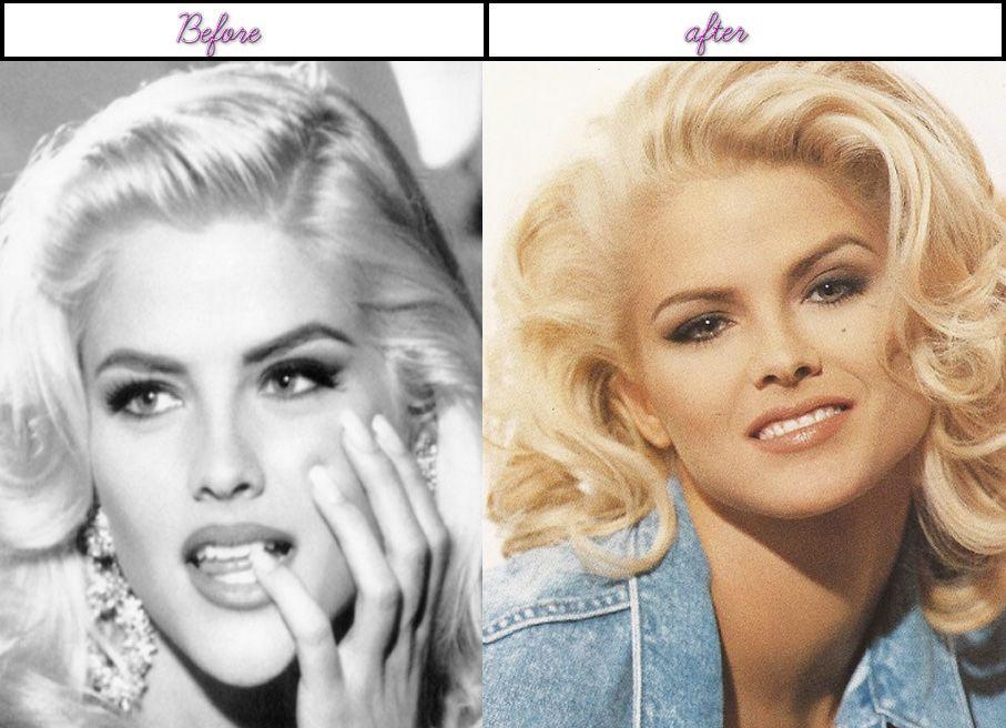 Anna Nicole Smith Plastic Surgery