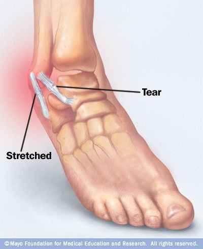 A sprained ankle is the stretching or tearing of ankle ...