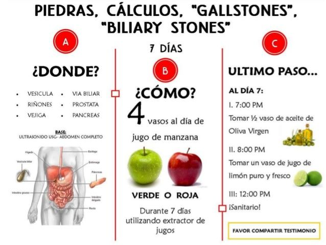 dieta para calculos biliares