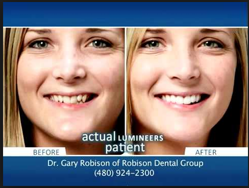 Mesa AZ Cosmetic Dentist Lumineers Vs Traditional Veneers Because Porcelain Are Thicker
