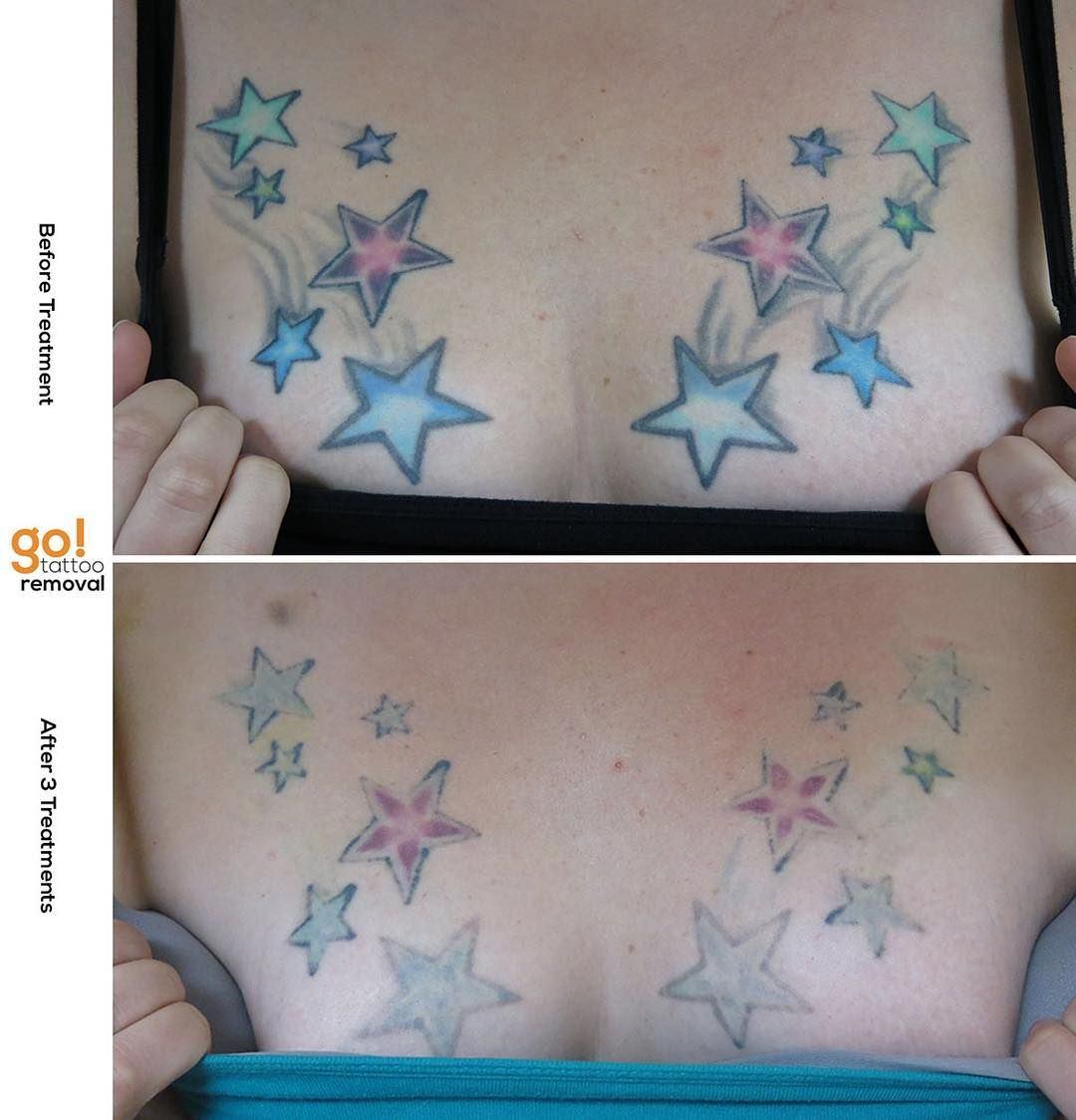 This Is Treated As One Tattoo Not 12 Individual Stars Or By The Square Inch And We Re Using Both Picosure And Qs Lasers To Laser Tattoo Tattoo Removal Tattoos