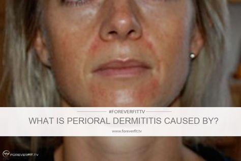 honey for perioral dermatitis