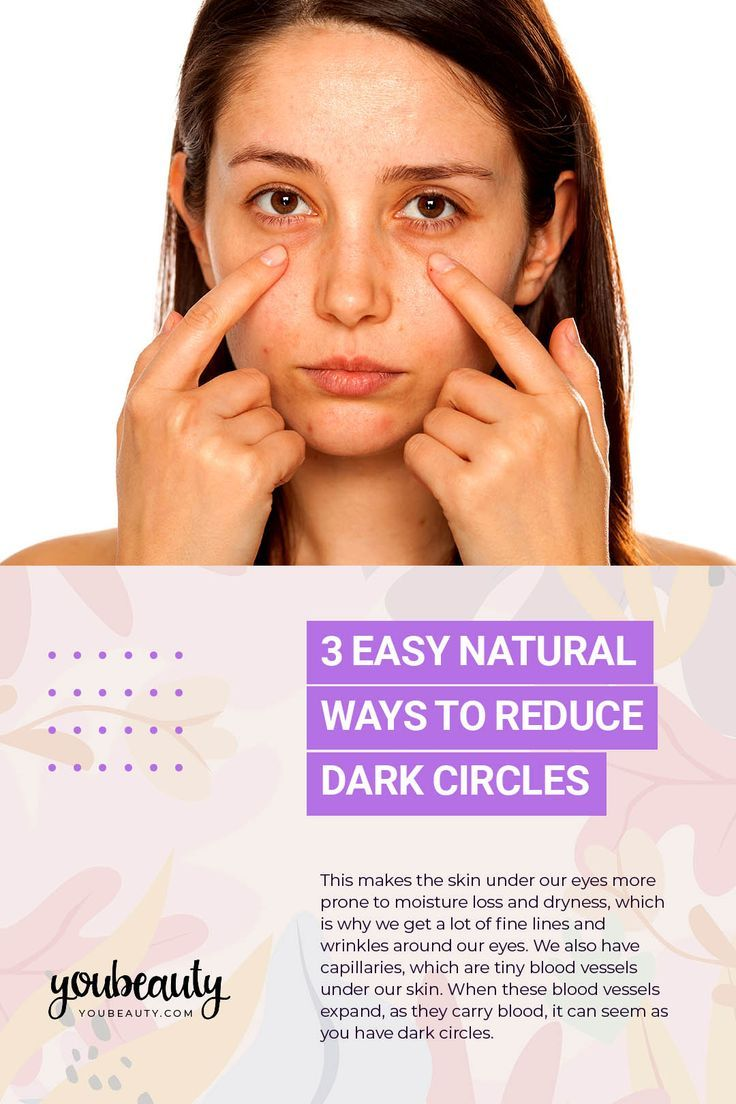 3 Easy Natural Ways To Reduce Dark Circles