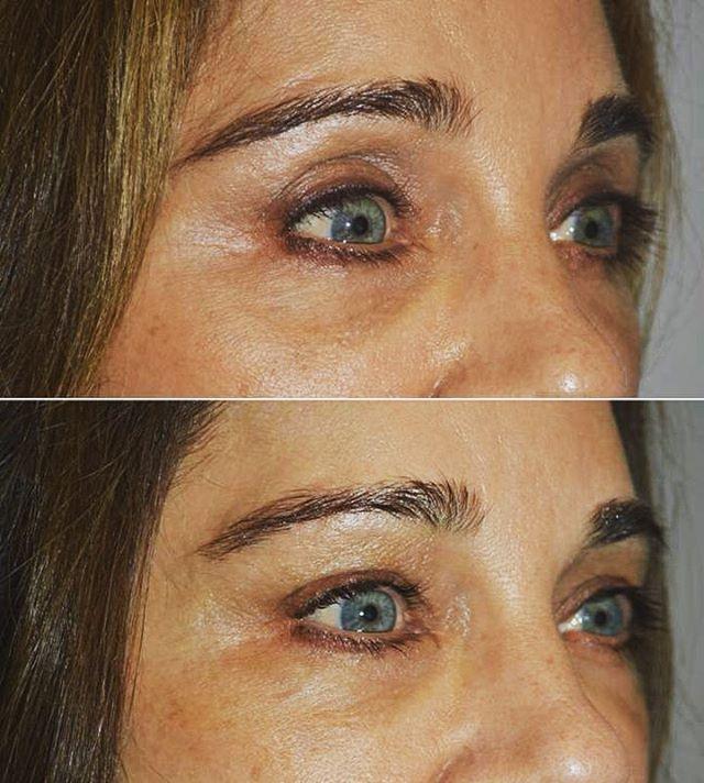Vergleichen von Gesichtsfüllern für eingefallene Augen, Belladonna von
