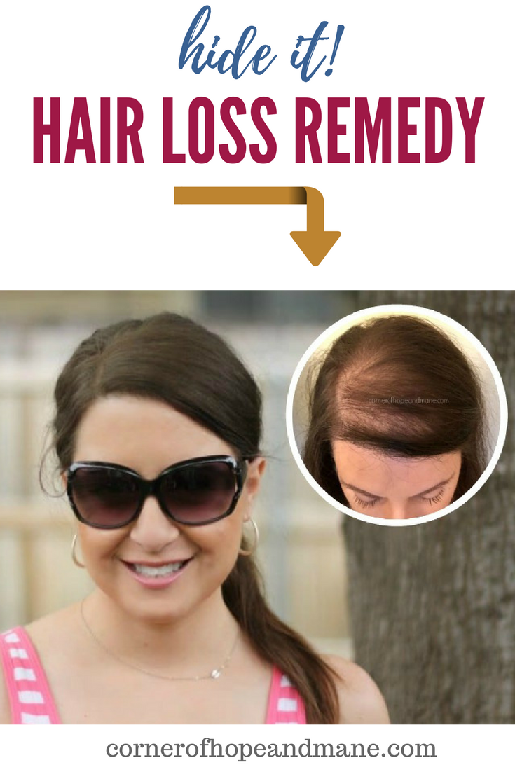 Hair loss in women can be devastating for men too I used this