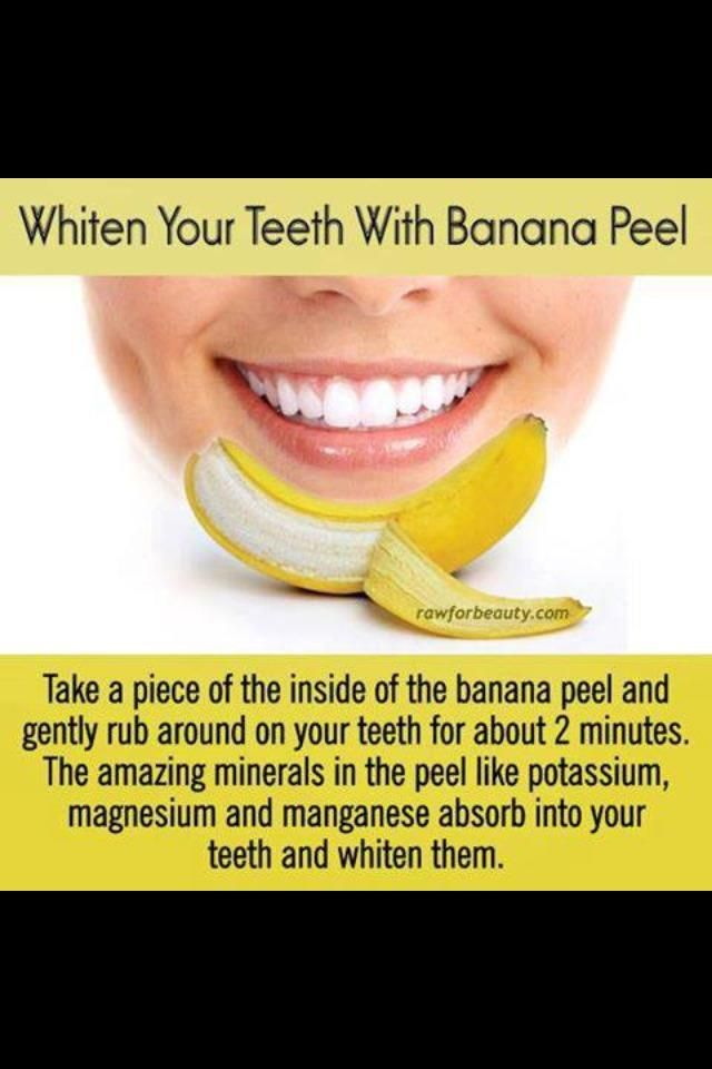 do bananas make your teeth whiter