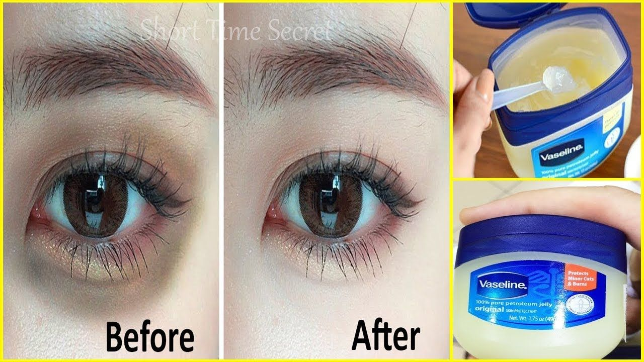 Apply Vaseline On Your Under Eye Dark Circles And See The Magic