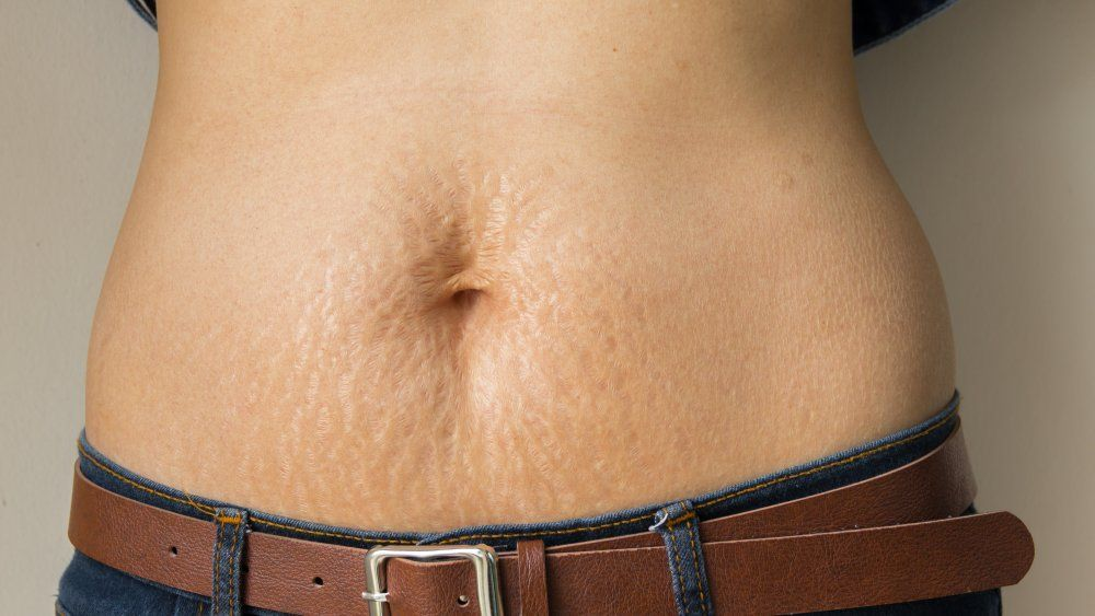 The Sneaky Trick That Can Help You Cover Up Stretch Marks While We May Refer To Our Stretch Marks By Cutesy Nicknames Li In 2020 Stretch Marks Blue Makeup Body Skin