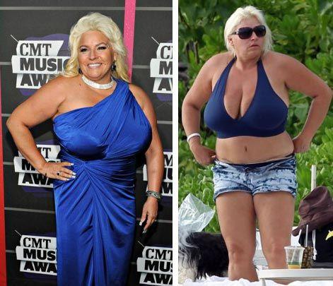 beth chapman plastic surgery boob job liposuction