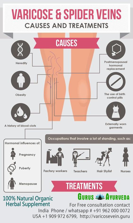 tratamentul seric varicoză