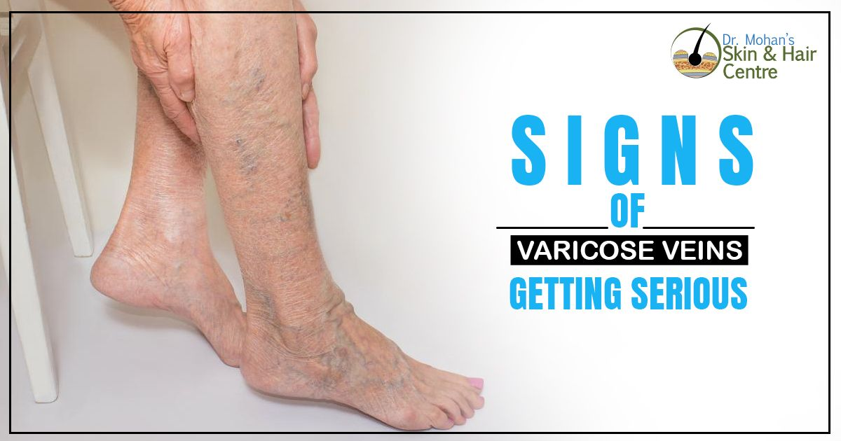 Ouch Our 75 Year Old Patient Had Suffered With This Venous Ulcer For A Long Time The Ulcer Was Successfully And Permanentl Vein Health Ulcers Veins Treatment