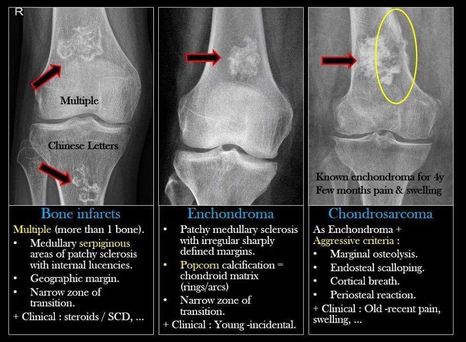 Pin By Dang Hang On Radiologie Radiology Imaging Human Anatomy And Physiology Radiology