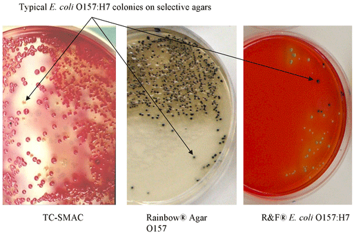 e coli o157 h7 Abstract the rapid emergence of escherichia coli o157:h7 from an unknown strain in 1982 to the dominant hemorrhagic e coli serotype in the united states and the cause of widespread outbreaks of human food-borne illness highlights a need to evaluate critically the extent to which genomic plasticity of this important enteric pathogen contributes to its pathogenic potential and its evolution as.